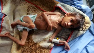 """""""أطفال اليمن"""".. أجساد هزيلة شاهدة على سنوات الحرب الدمار (تقرير)"""