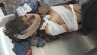 منظمة دولية: الربع الأول من العام الجاري الأكثر دموية على الأطفال في اليمن