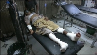 دعت لوقفها فورًا.. الأمم المتحدة تدين المجزرة التي ارتكبها الحوثيون في الحديدة